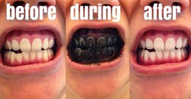 Làm răng trắng bóng bằng cách đánh răng với… than