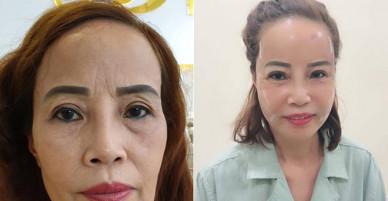 Hậu đám cưới, cô dâu 62 tuổi thực hiện ca phẩu thuật trùng tu nhan sắc khiến nhiều người bất ngờ