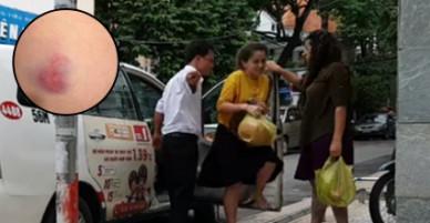 Khi vụ kiện với Grab chưa ngã ngũ, tài xế Vinasun lại vừa hành hung khách hàng khiến dư luận phẫn nộ