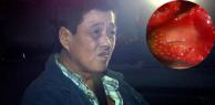Thủ phạm đâm kim vào dâu tây khiến chính phủ Úc dọa tử hình nếu bắt được lại là người Việt Nam?