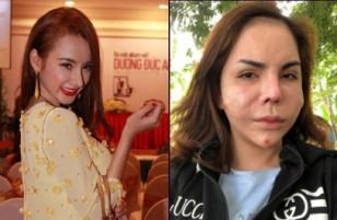 7 người nổi tiếng đang khốn khổ vì ngoại hình biến dạng sau khi phẫu thuật thẩm mỹ